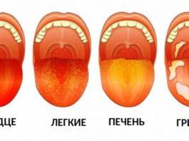 12 проблем со здоровьем, которые вы можете определить, взглянув на свой язык