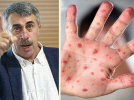 Умрёт каждый 10-й: Доктор Комаровский предупреждает о вспышке новой инфекции