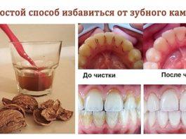 Классный способ избавиться от зубного камня самому и дома!