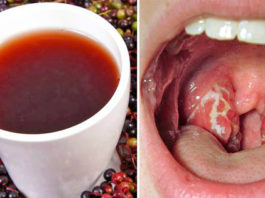 Натуральное средство против боли в горле: только 4 часа — и ангина исчезает напрочь!