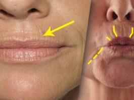 «Взрослая красота»: как убрать морщины над губами
