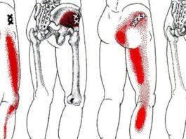 Избавит от боли в спине и ишиаса это средство и 2 упражнения! Боль исчезнет навсегда!