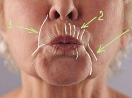 Как убрать глубокие морщины вокруг рта: 5 домашних масок, творящих чудеса с увядающей кожей