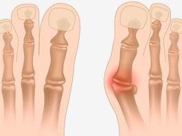 Медсестра рассказала, как избавиться от косточки на ноге