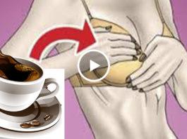 Она пила 3 чашки кофе в день и вот, что случилось с ее грудью