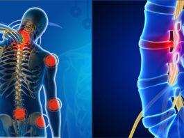 «Самая главная ошибка всех, у кого часто болят спина и шея…» Комплекс эффективных упражнений от остеопата
