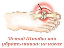 Эффективный метод Н.Н. Штаба избавит от болезненной шишки на ноге!