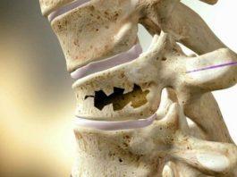 Как укрепить кости: народные способы и питание. Враги крепких костей