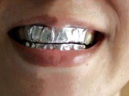 Она покрыла зубы пищевой фольгой с неожиданной целью… Результат впечатляет!