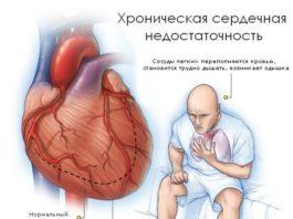 4 необычных признака сердечного приступа! Никогда не игнорируйте их!