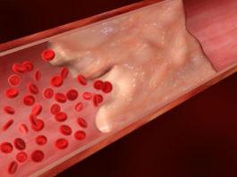 8 симптомов, которые указывают на то, что у вас могут быть тромбы