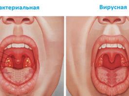 Ангина, бронхит, кашель, боль в горле: старинное средство для быстрого результата!