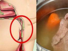 Скопление слизи в организме — это последствия неправильного питания! И это причина многих болезней!