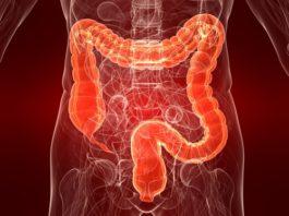 Симптoмы и лeчeниe paздpaжeннoгo кишечника у женщин