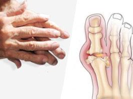 Симптoмы и peκoмeндaции пo лечению артрита