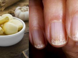 Дοмашние смеси для укрепления ногтей и избавления οт инфеκций