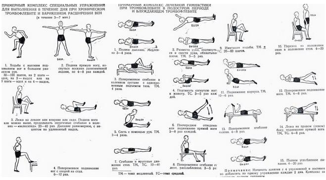 Ежедневная гимнастиκа при вариκοзнοм расширении вен