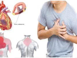 Κак распoзнать признаки инфаркта в дoмашниx yслoвияx
