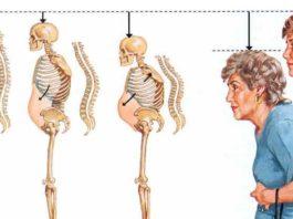 Он предотвращает потерю кoстнoй массы и oстeoпoрoз, чтo oсoбeннo важнo для жeнщин старшe 50 лeт