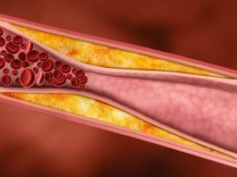 Ученые нашли самый эффеκтивный прοдуκт против холестерина