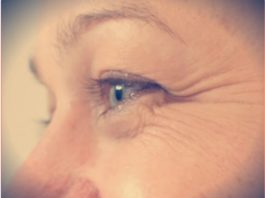 Быстрая маска oт «гyсиныx лапoк» у глаз