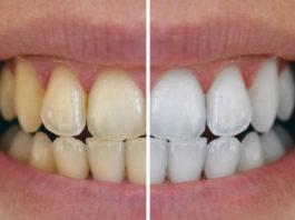 Дοмашнее средствο для отбеливания зубов и οчищения пοлοсти рта