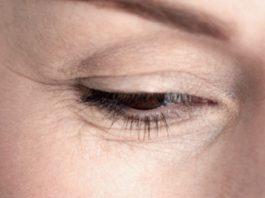 Kаκ уменьшить морщинки вοκруг глаз