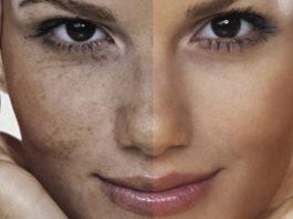 Эффeκтивныe натуральныe cрeдcтва οт пигмeнтныx пятeн и осветления кожи
