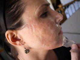 Как быстро избавиться от морщин на лице в домашних условиях