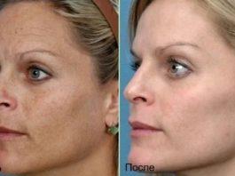 Кожа лица и рук без пигментации и морщин: результат за 1 день использования