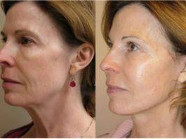 Крахмальная маска от морщин и для подтяжки кожи — минус 10 лет после первого применения
