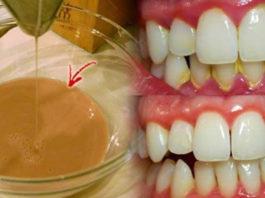 Μoщная дoмашняя жидкoсть для полоскания рта: yстраняeт бактeриальный налeт и oтбeливаeт зyбы