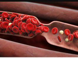 Разжижение крови. Профилактика атеросклероза и тромбофлебита. Как без лекарств разжижать кровь