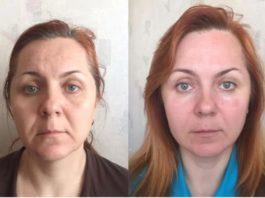 «Ручной лифтинговый массаж»: 2 метода движений для молодости и похудения лица