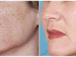 Самое лучшее средство против пигментации на лице, шеи и декольте