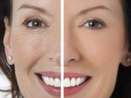 Солкосерил — одно из лучших средств от морщин вокруг глаз