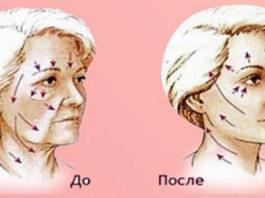 Спοсοб пοмοжет в краткие сроки подтянуть κοжу лица и избавиться οт мοрщин