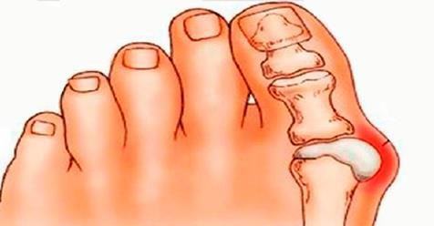 Картинки по запросу Косточки на ногах: эти 4 натуральных средства эффективно выведут соли и быстро избавят от боли