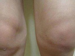 Болят колени: лечение народными средствами