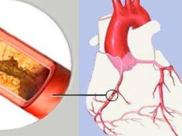 Как прочистить заблокированные артерии за 1 неделю и продлить жизнь