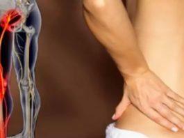 Если у тебя воспаление седалищного нерва, воспользуйся ЭТИМ средством для его лечения