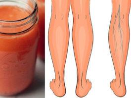 Эти три супер сока эффективно улучшают кровообращение в ногах, укрепляют вены и устраняют отёки