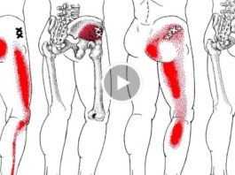 Избавься от боли в спине и ишиаса быстро. Применяй это средство и 2 упражнения и боль исчезнет навсегда