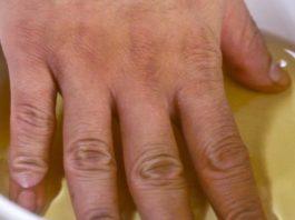 Мощный метод быстро снимает воспаление и устраняет боль в суставах рук, ног, шеи и спины