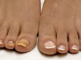 Навсегда удалить грибок с ногтей рук и ног помогут эти 2 натуральных средства