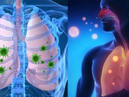 11 мощных домашних средств от вирусных инфекций, кашля, бронхита и простуды