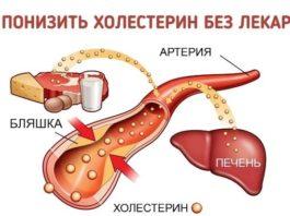 Как понизить уровень холестерина БЕЗ лекарств