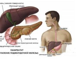 Как уберечь поджелудочную железу от воспаления: опасное заболевание