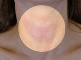 Правда о вашей щитовидной железе и эфирных маслах: ни один эндокринолог вам не расскажет об этом