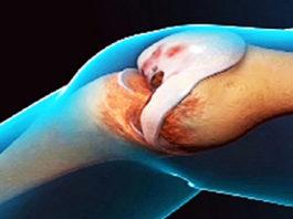 Врачи удивляются. Это средство восстанавливает колени и суставы
